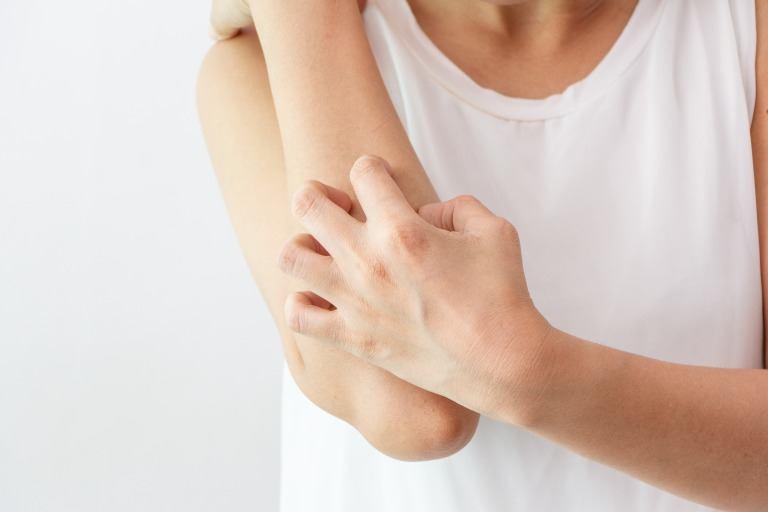腕がかゆいイメージ